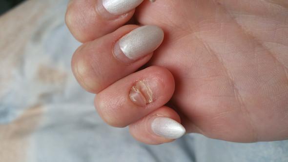 Mein neuer Nagel wächt ganz komisch nach? (Nageldesign)