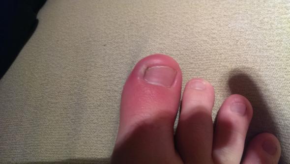 Geschwollene Rote Zehen