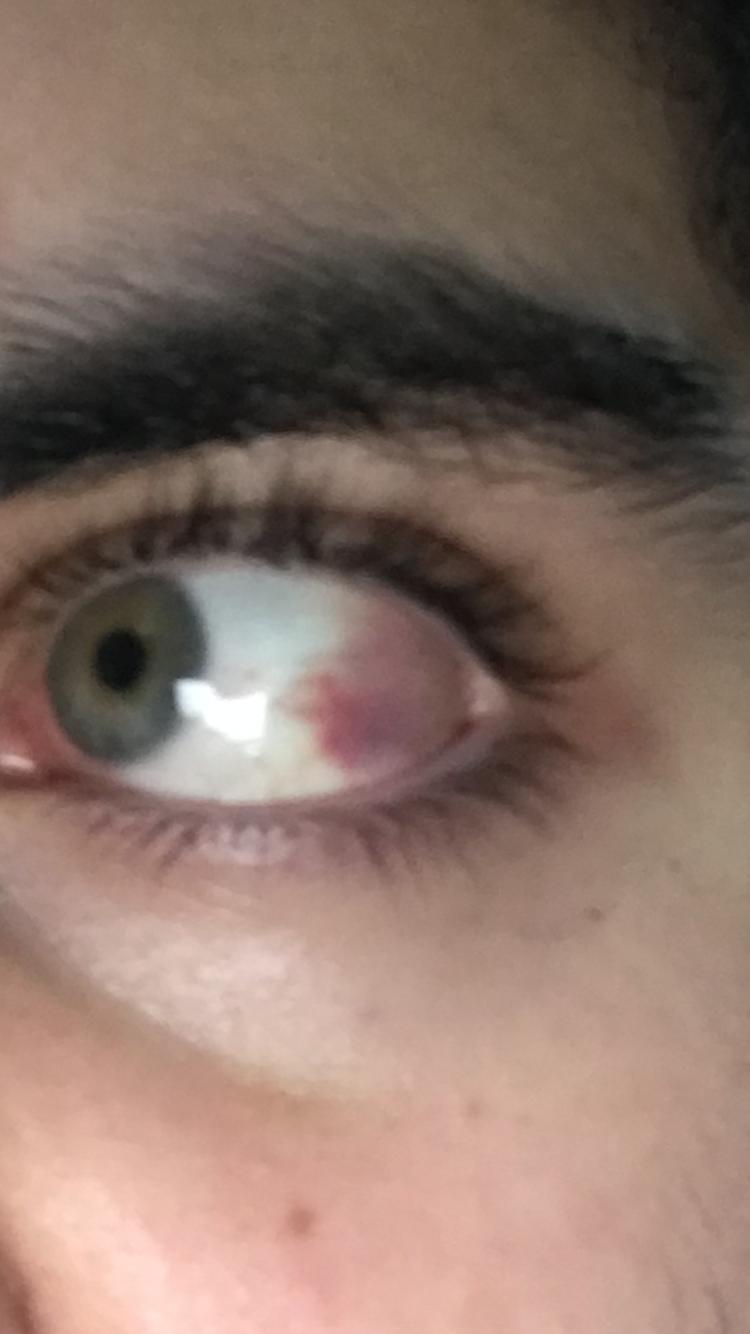 Meine Auge ist rot, was ist die Ursache und ist es schlimm