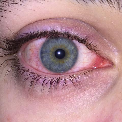So schaut es aus - (Medizin, Augen, EntzÜndung)