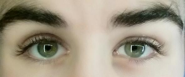 Meine Augen sind auffällig ungleich groß. Ist das noch