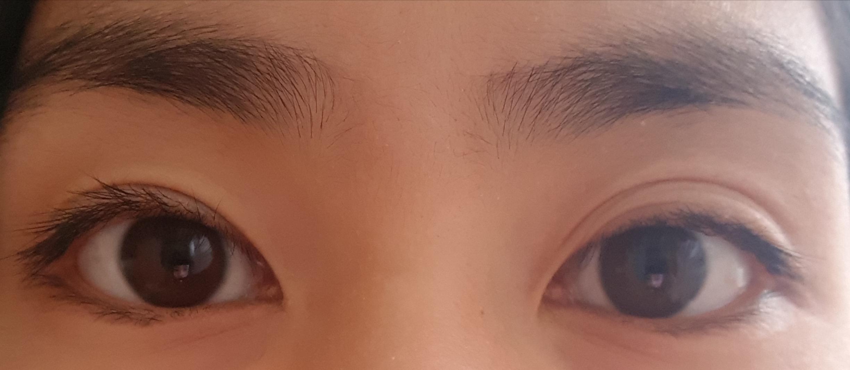 Meine Augenlider sind sie kurzem unterschiedlich