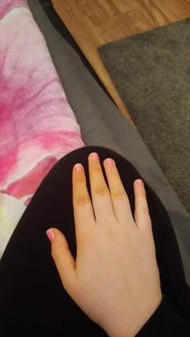 Meine finger haben sich gelb verfärbt muss ich jetzt sterben?