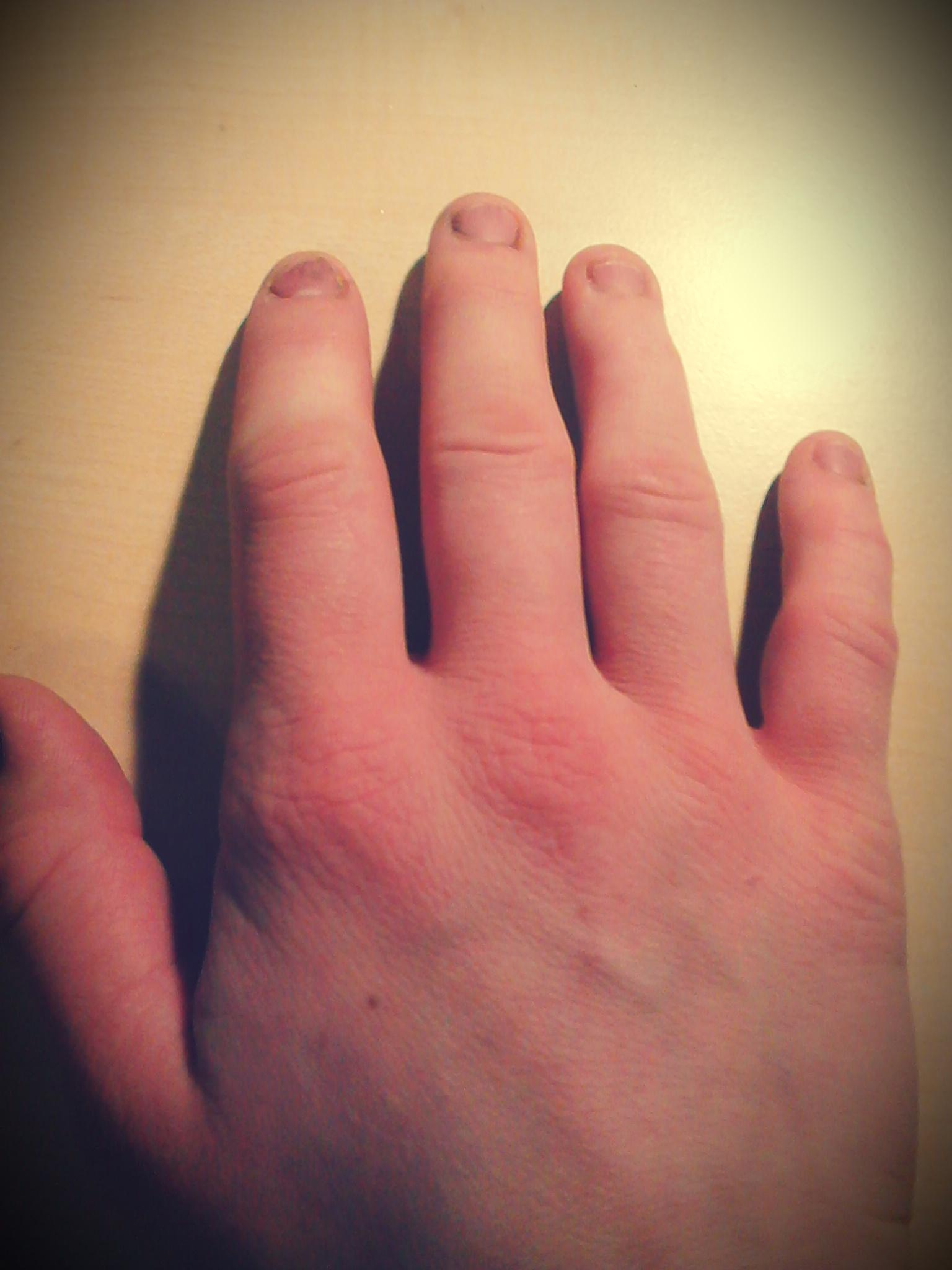 meine finger jucken und sind geschwollen. (hand, juckreiz)
