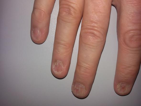 rechte Hand - (Nägel, Fingernägel)