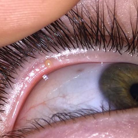 Hier ist das Bild von dem Auge Zum Arzt oder nicht ? - (Gesundheit, Augen, Gerstenkorn)