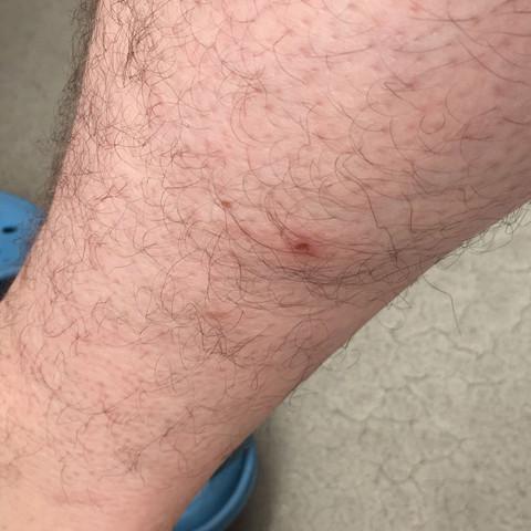 Rechts - (Insekten, Mücken, Parasiten)