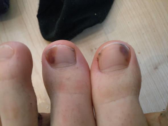 Fußnagel verfärbt - (Gesundheit, Gesundheit und Medizin, Krankheit)