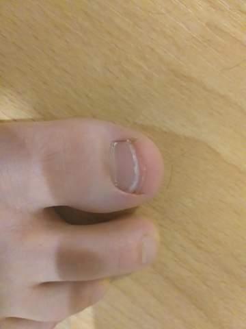 Meine Fußnägel sind glaube ich viel zu kurz, was sagt ihr? Sind sie zu kurz?