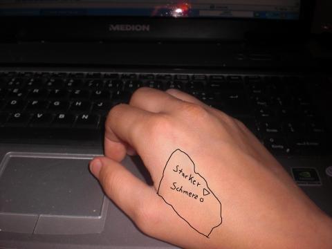 Meine Hand - (Arzt, Schmerzen)