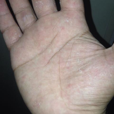 bei meiner hand- und fußinnenfläche schält sich die haut ab. was