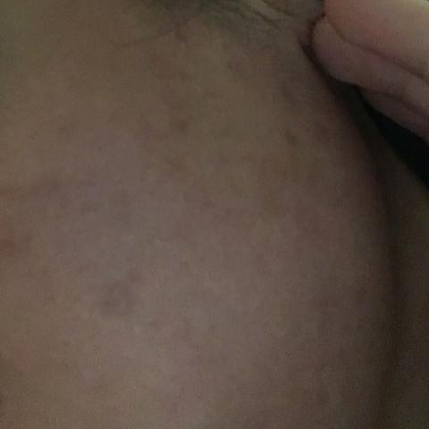 Bild 1 - (Haut, Pickel, Reinigung)