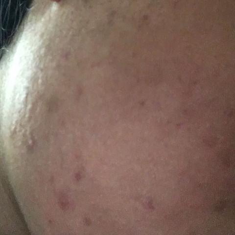 Bild 2 - (Haut, Pickel, Reinigung)
