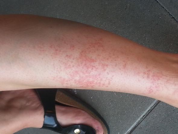 Pigmentflecken Beine