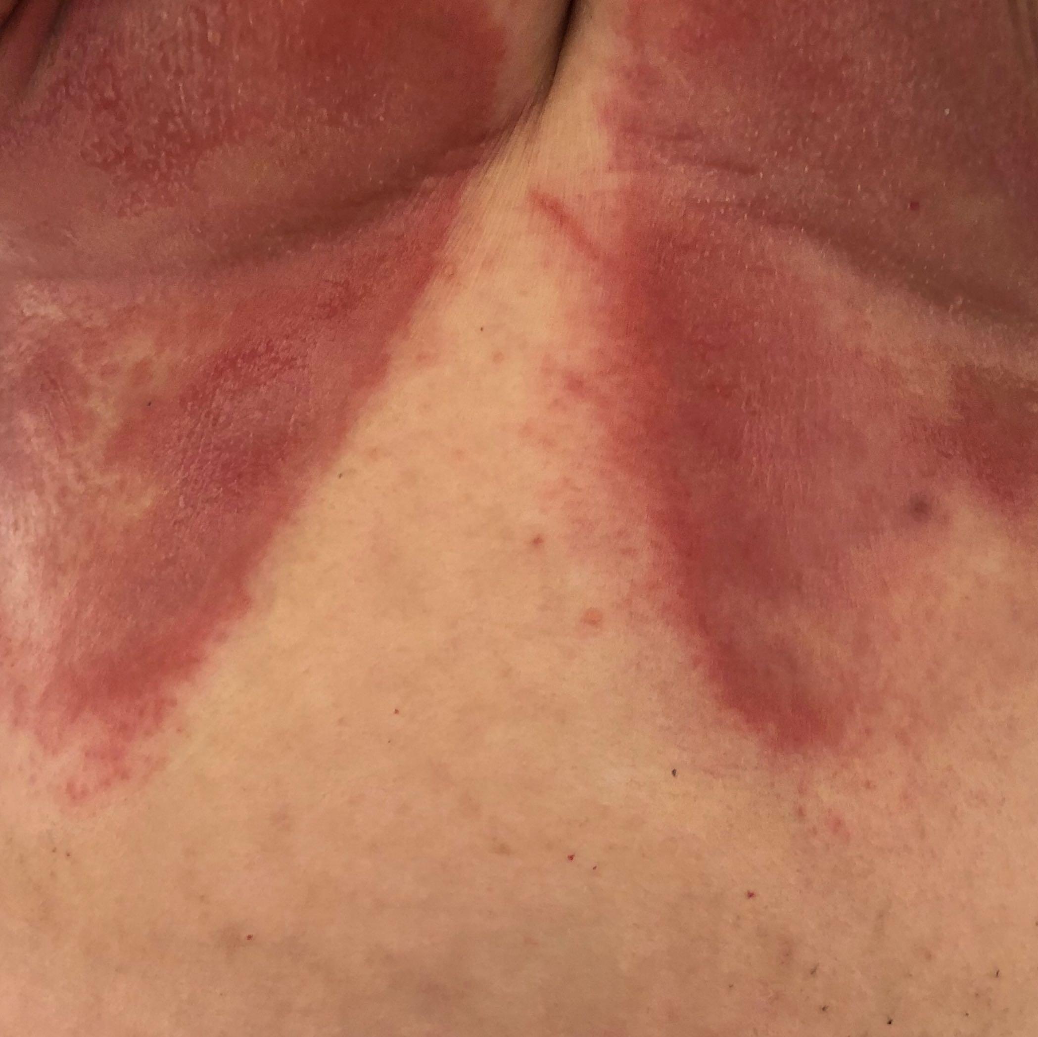 Hautpilz Unter Brust
