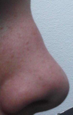 Meine Nase ist mega hässlichMeinungen? Bitte ehrlich