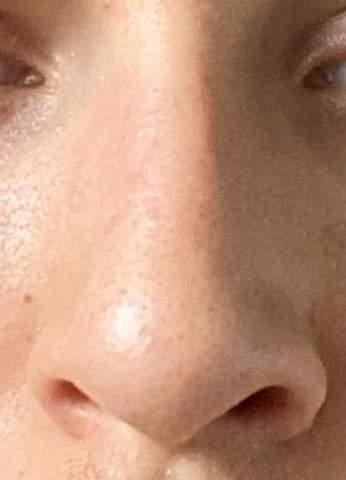 Meine Nase ist schief? Ist das normal? (Gesundheit und