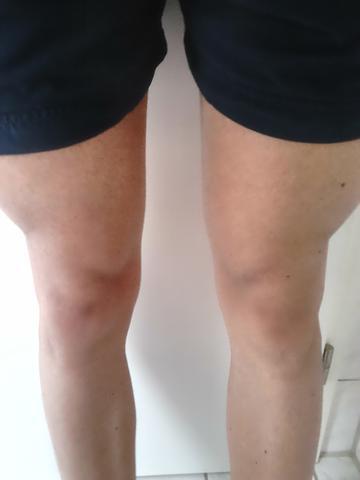 Oberschenkel - (Fitness, Beine)