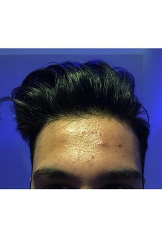 meime stirn - (Haut, Stirn)