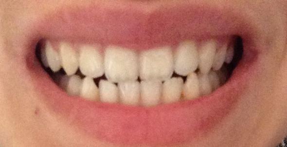 meine zähne - (Zähne, Zahnarzt, Zahnspange)