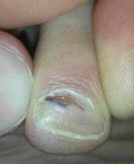 Als brüchig slojaschtschijessja die Nägel zu behandeln