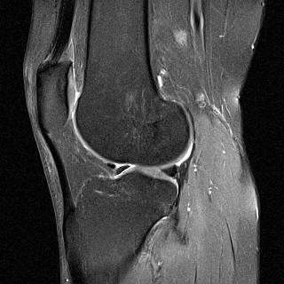 MRT - (Knie, orthopäde, Sprunggelenk)