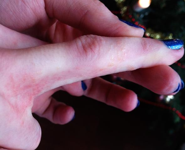 Ausschlag am Finger - (Haut, Juckreiz, Ausschlag)