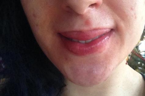 Geschwollene Lippen... - (Haut, Juckreiz, Ausschlag)