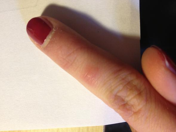 Minibeule - (Gesundheit, Finger)