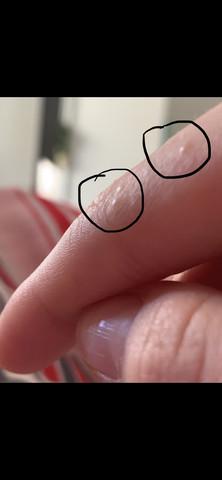 Finger ausschlag Petechia