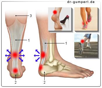 Verletzung - (Gesundheit, Sport, Medizin)