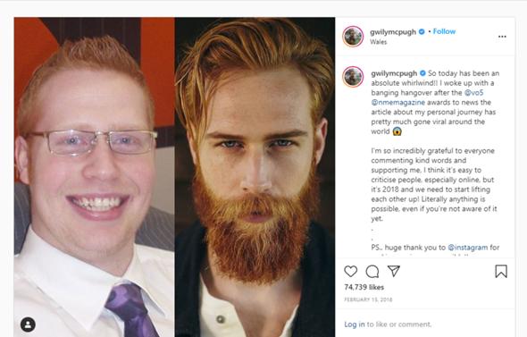 Bart ohne mit bart Lecken mit