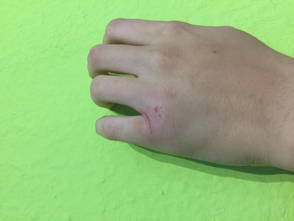 Der kleine finger - (Krankenhaus, Verletzung, minderjährig)