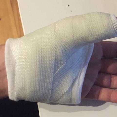 Die Schiene: - (Verletzung, Gips, Knochenbruch)