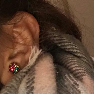 Normales Ohr - (Gesundheit, Schmerzen, Piercing)