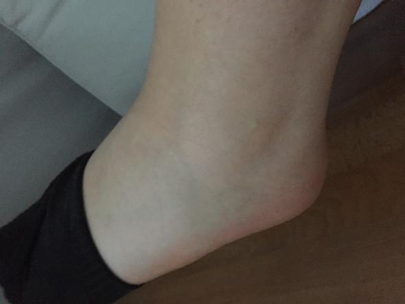 Fuß umgeknickt nicht geschwollen aber schmerzen