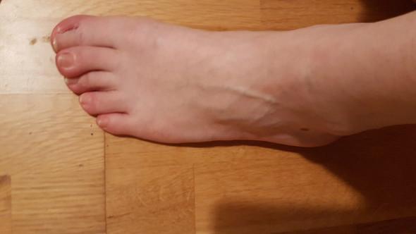 Mit Fuß umgeknickt zum Arzt? (Gesundheit, Unfall)