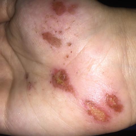 Hand  - (Arbeit, Hygiene, Wunde)