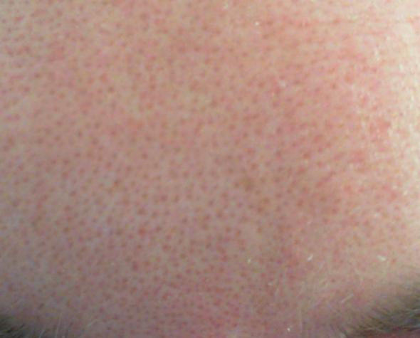 Stirn - (Haut, Pickel, Pflege)