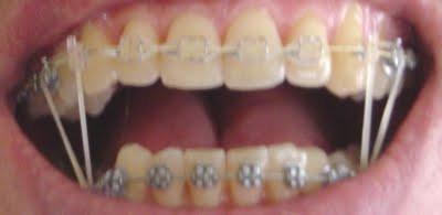 nicht mein mund, aber da seht ihr die gummis. /meine sind ca 3 mal so dick.... - (Schmerzen, Menschen, Zähne)