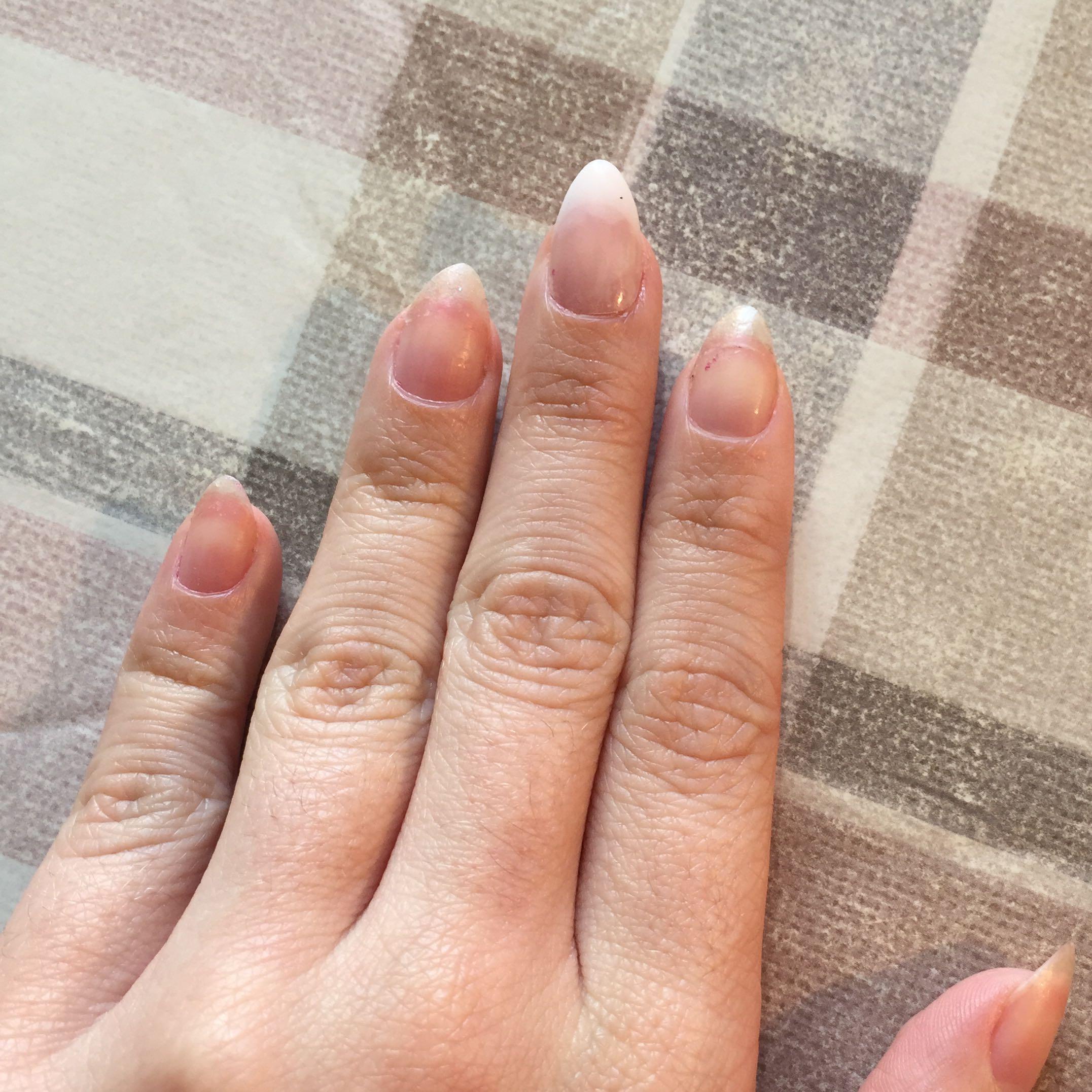 Mittelfingernagel Abgebrochen Fake Nagel Aufgeklebt? Ist Das Ok? (Beauty Nu00e4gel Nagellack)