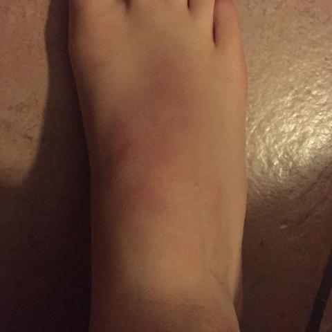 Mein Fuß wie er momentan aussieht. Zum Arzt? Ja oder Nein? - (Arzt, Füße, rot)