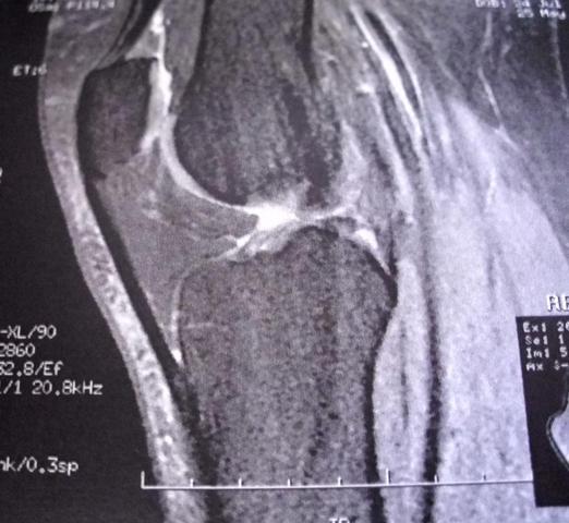 Knie 2 - (Gesundheit, Medizin, Körper)
