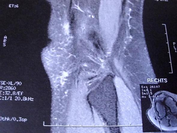 Knie 7 - (Gesundheit, Medizin, Körper)