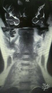 Bild 2 - (Arzt, Ratschlag, MRT)