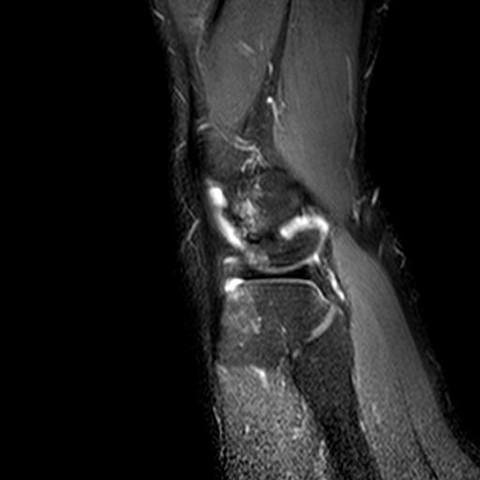 Knie1 - (Gesundheit und Medizin, Bilder, Knie)