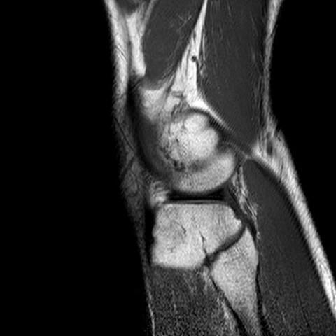 Knie2 - (Gesundheit und Medizin, Bilder, Knie)