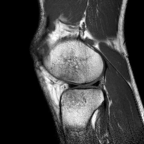 Knie5 - (Gesundheit und Medizin, Bilder, Knie)