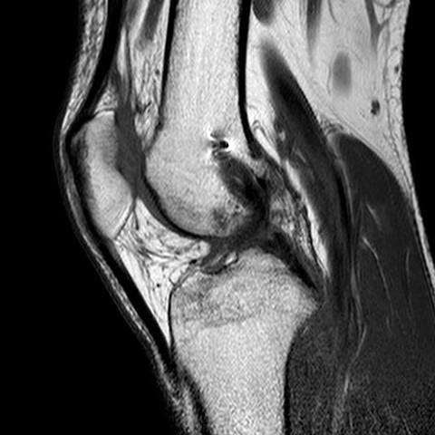 Knie6 - (Gesundheit und Medizin, Bilder, Knie)