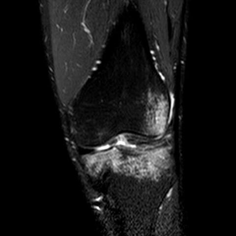 Knie7 - (Gesundheit und Medizin, Bilder, Knie)